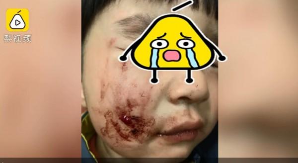 中國河南焦作市,上月30日有位張姓婦人帶著2歲兒子等電梯,當電梯門一開,便有3隻狗衝出,其中一隻撲倒並咬傷該童,但目睹全程的狗飼主卻不以為意,轉頭就走。(翻攝自《梨視頻》)