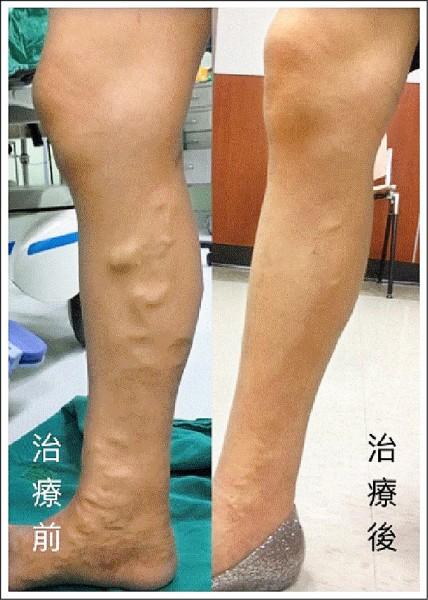 靜脈曲張微創治療可以不用開刀就徹底處理潛在的病灶。 (照片提供/柯博仁)