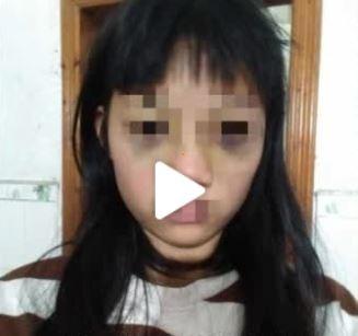 被霸凌的13歲少女小嫻(化名),在本月25日到朋友家中聚會並過夜,深夜突然被人叫醒,隨後便遭劉女與其男友暴打。(圖擷取自微博)