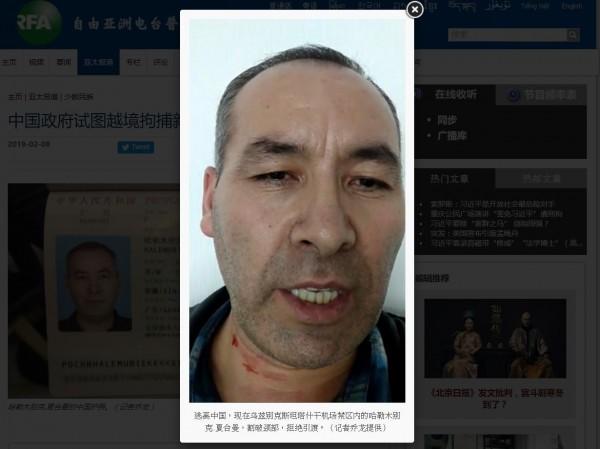 哈勒木别克不滿中國在新疆採取的政策,於是出國尋求庇護,甚至劃破自己頸部,拒絕被遣送回國。(圖擷取自「自由廣播電台」網站)