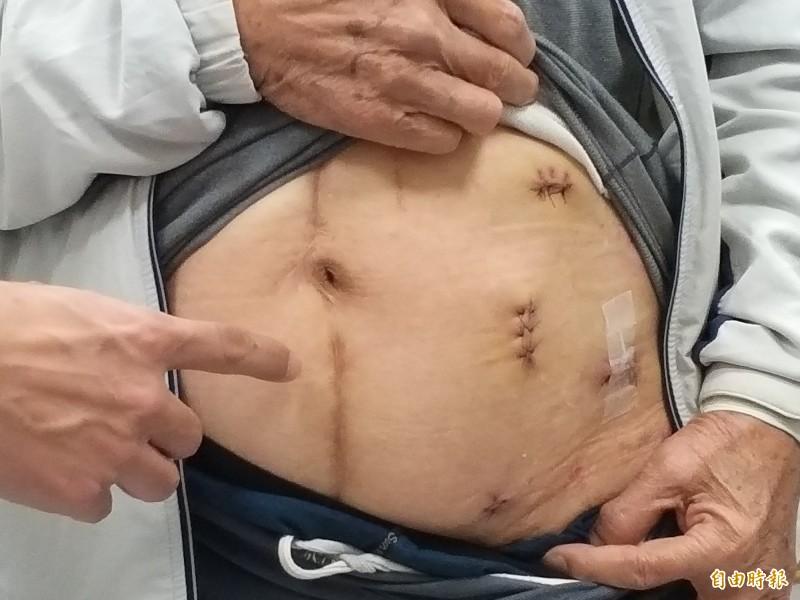 黃姓病患翻開上衣出示他接受微創手術切除惡性腫瘤所留下的4個小傷口。(記者廖雪茹攝)