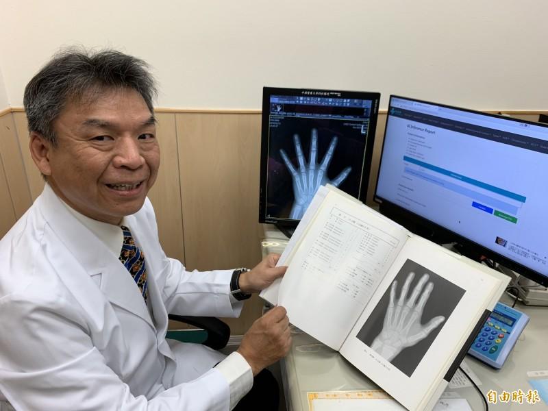 中國醫藥大學副校長蔡輔仁指骨齡X光判讀傳統要翻書找圖譜,現在AI立即判讀。(記者蔡淑媛攝)