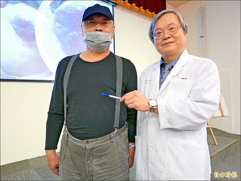 醫師吳建廷提醒,男性也可能罹患乳癌,不要輕忽,患者鄭先生治療後,控制良好。(記者蔡淑媛攝)