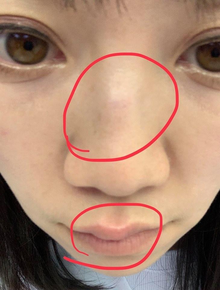 台北市美女議員高嘉瑜今天中午12時許在臉書貼出一張「鼻青唇腫」的照片,並貼文自述撞到玻璃。(圖翻攝自高嘉瑜臉書)