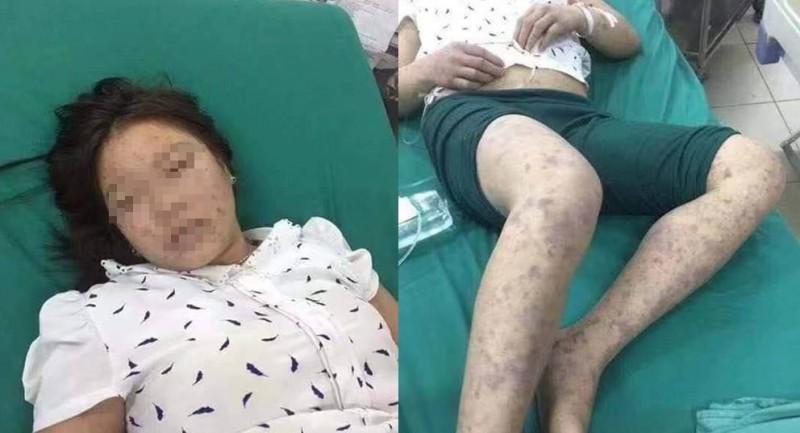 越南傳出非洲豬瘟病毒感染人體謠言,越南政府出面打臉,嚴正澄清,強調非洲豬瘟病毒無法傳染人類。(圖擷取自臉書)