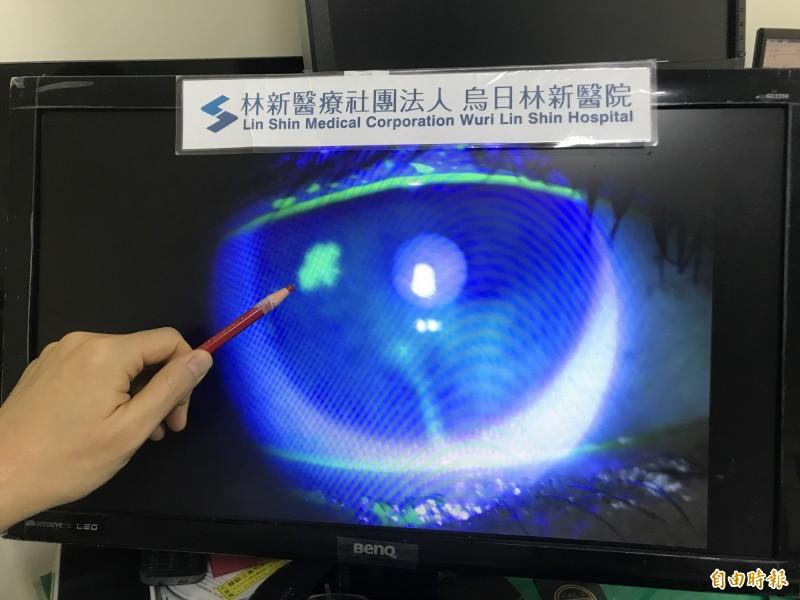 醫病》中年女眼疼痛且模糊不清 竟是病毒性角膜炎