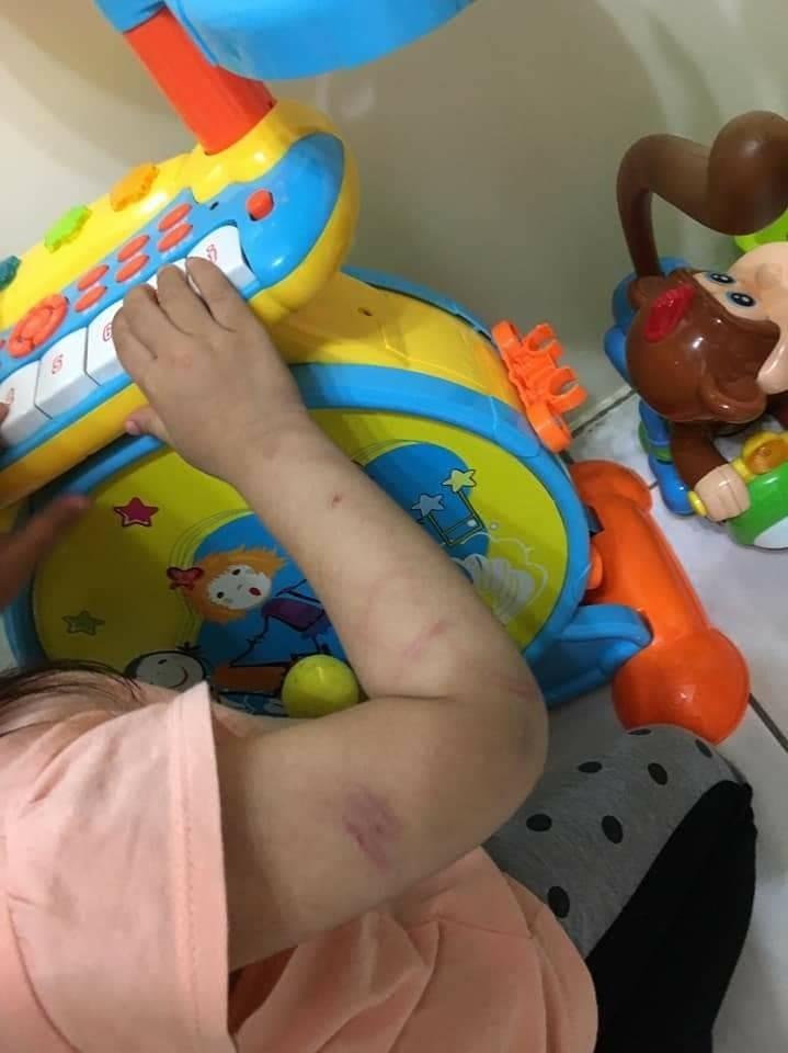 女童被衣架打到瘀青,阿姨PO網稱要女童長期遭到虐待。警方目前正在調查。(記者王捷翻攝)