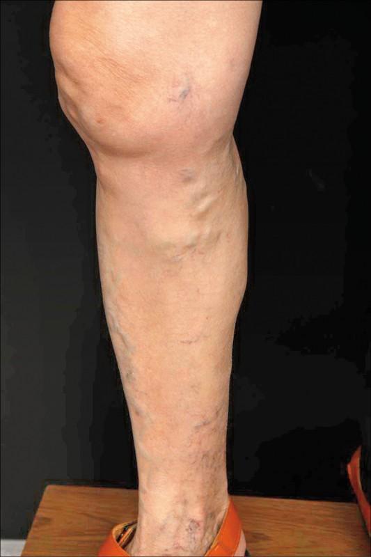靜脈曲張不僅外觀讓人困擾,腿部的抽筋、腫脹不適,也讓患者不舒服。(照片提供/張學倫)