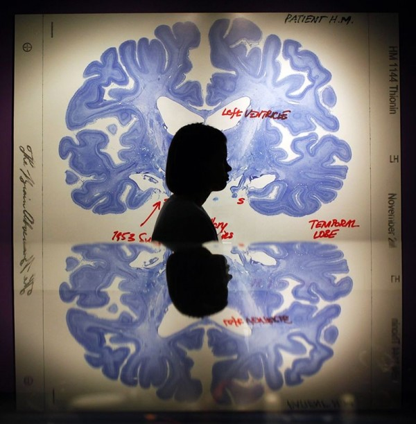美國家衛生研究院人腦研究倡議團隊一項研究發現,腦細胞在邁向死亡的路上,所需的時間比起我們過往所想像的還要長。(路透)