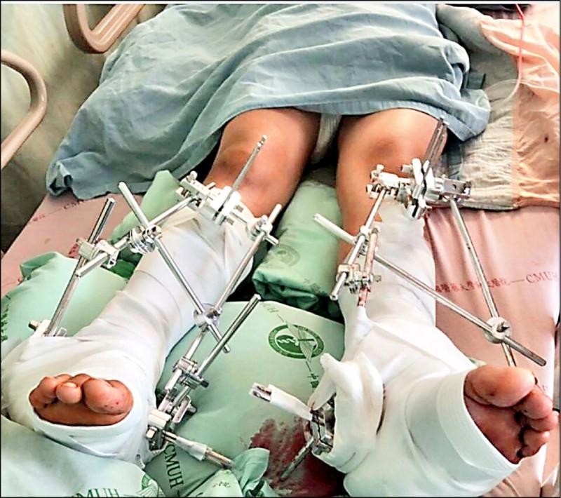 國三男學生腳踝變形、雙腳骨折,目前仍在醫院治療。(翻攝自爆料公社)