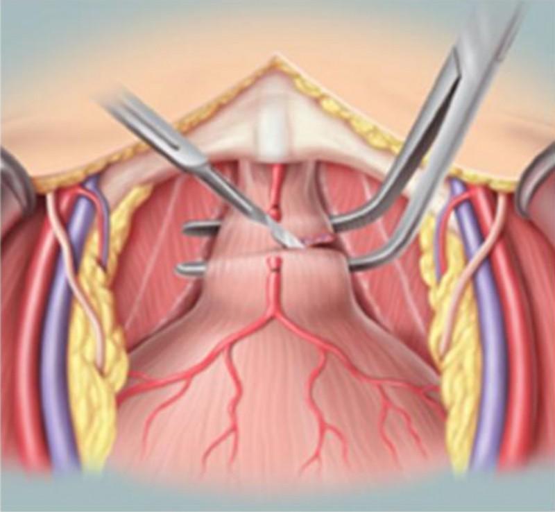 開腹手術雖然傷口大,但可以清楚切除癌病灶。(記者蔡淑媛翻攝)