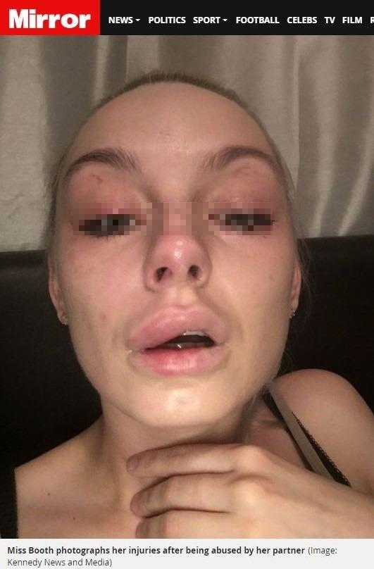 英國男子海文斯(Alexander Heavens)涉嫌痛毆女友臉部等肢體傷害,圖為受害女友。(圖擷取自英國《鏡報》)