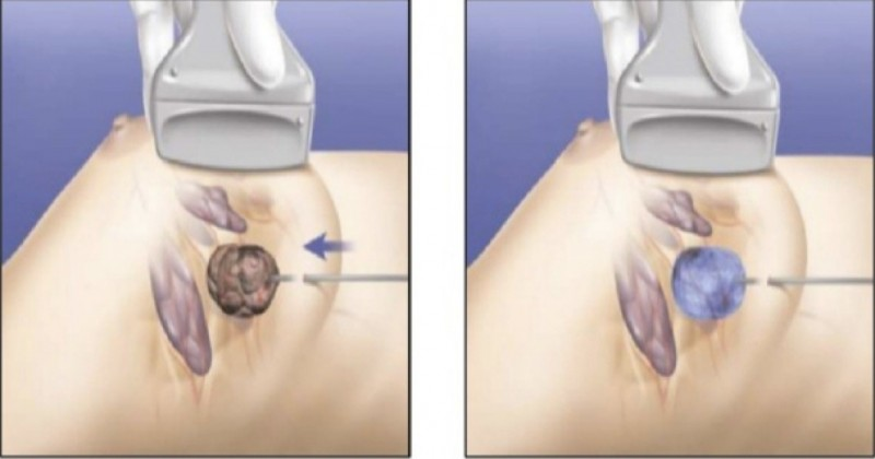 乳癌冷凍治療,在超音波導引下,探針刺入腫瘤(圖左),以零下170度的低溫結成冰球,包覆腫瘤和殺死癌細胞(圖右)。(記者蔡淑媛翻攝)
