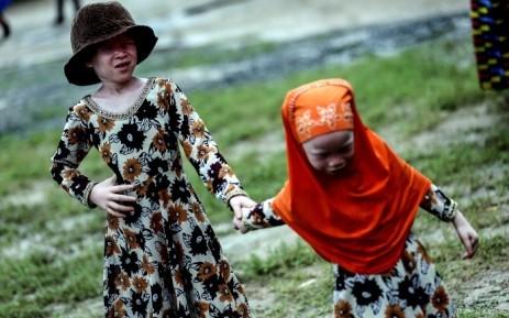 坦尚尼亞患有白化病的兒童經常被綁架及肢解,以製成巫藥。(法新社檔案照)