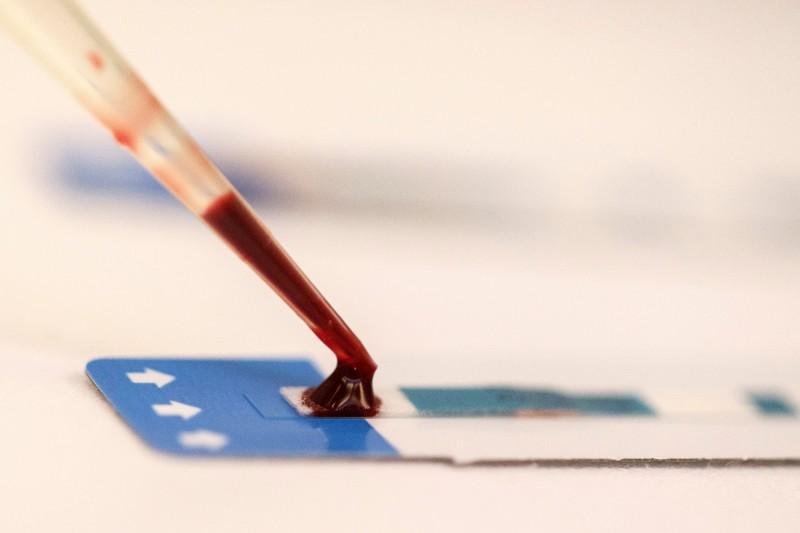 巴基斯坦南部地區因無良醫生讓病人共用針頭,導致大量民眾感染愛滋病毒(HIV),當地官員週六(11日)證實,已確診病例高達393人。(路透)