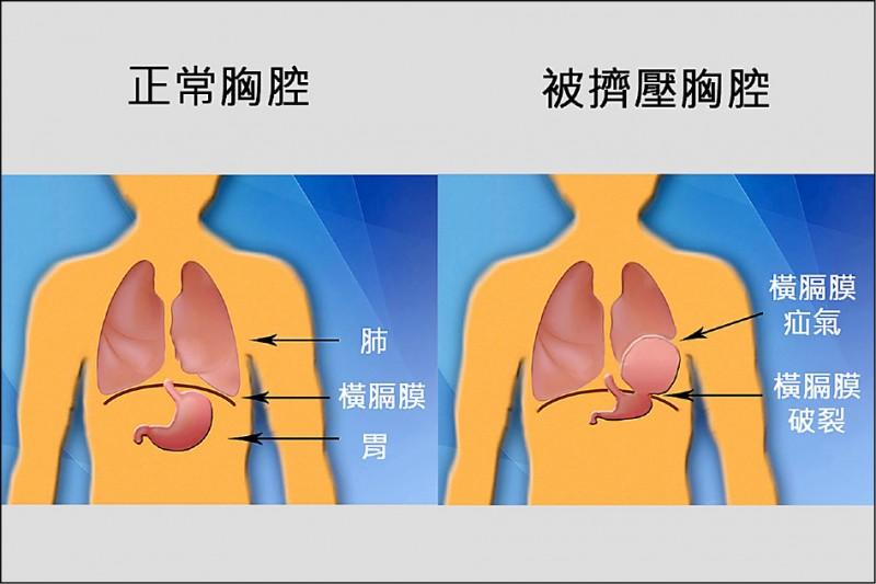 正常的胸腔和被擠壓的胸腔對照示意圖。(記者張軒哲翻攝)