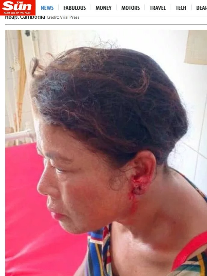 李普在這場夫妻吵架中被丈夫咬傷左耳。(翻攝自太陽報)