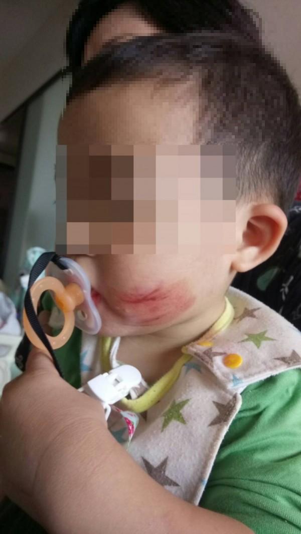 男童被保母當教練的兒子,掐臉頰抓出血痕。(家長提供)