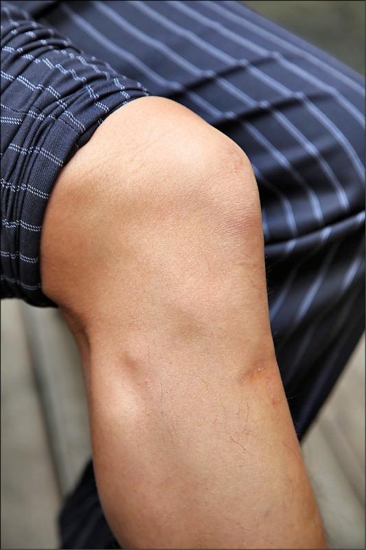 膝關節最常出現的症狀是紅腫熱痛與膝關節有僵硬感、怪聲,林宗慶醫師建議不對勁就需要馬上就醫。(本報資料照)