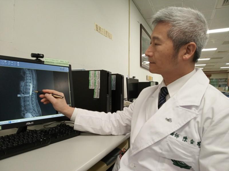 陳姓女教師的腫瘤從脊髓中長出,介在腰椎及胸椎之間,手術難度高。(大林慈濟醫院提供)