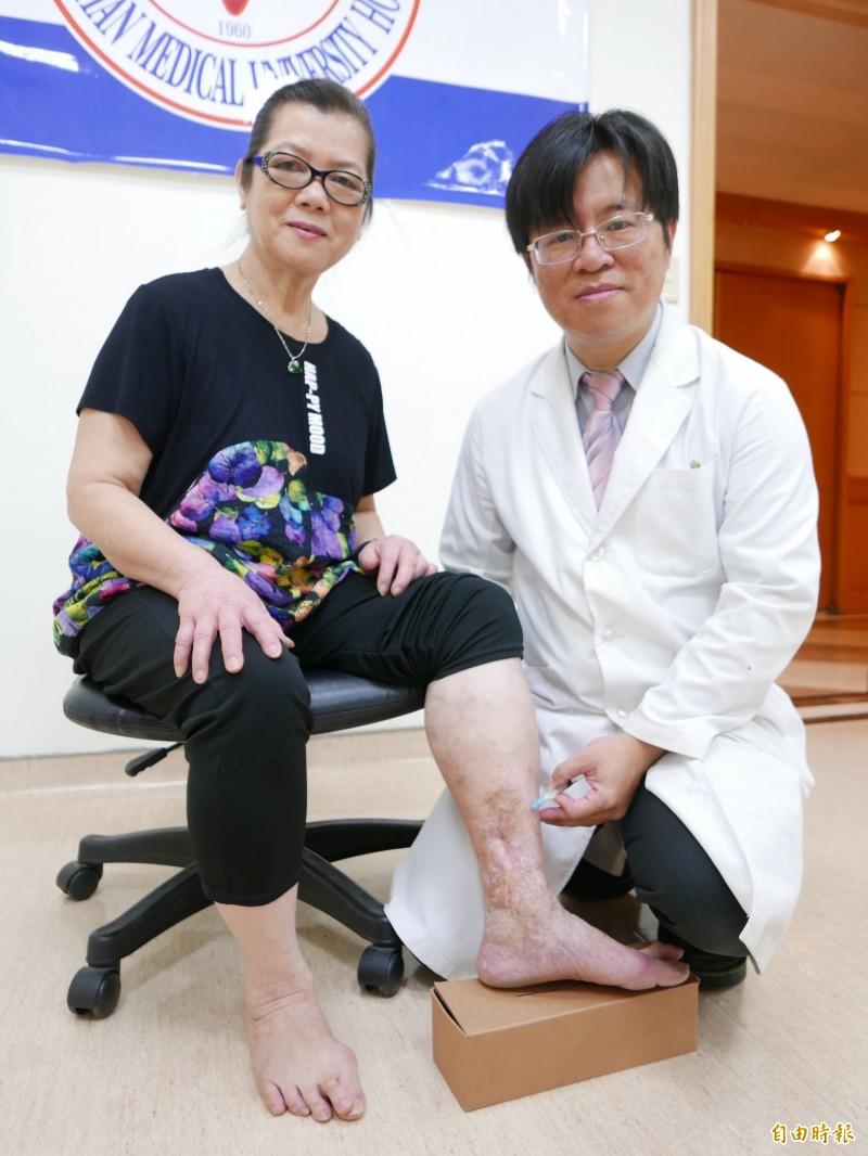 歐姓婦人嚴重靜脈曲張,醫師林子鈞為他進行硬化劑泡沫治療後大幅改善,傷口復原,腿部不再腫痛。(記者蔡淑媛攝)