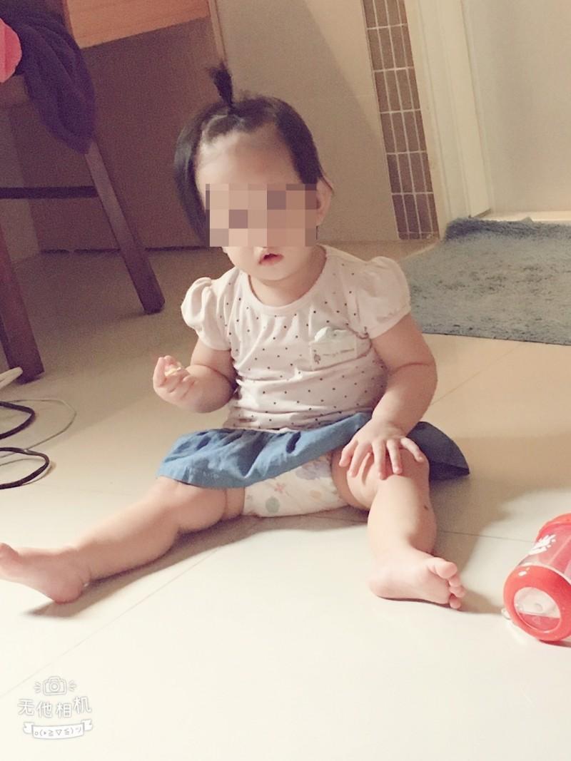 1歲女童受傷前可愛模樣。(家屬提供)
