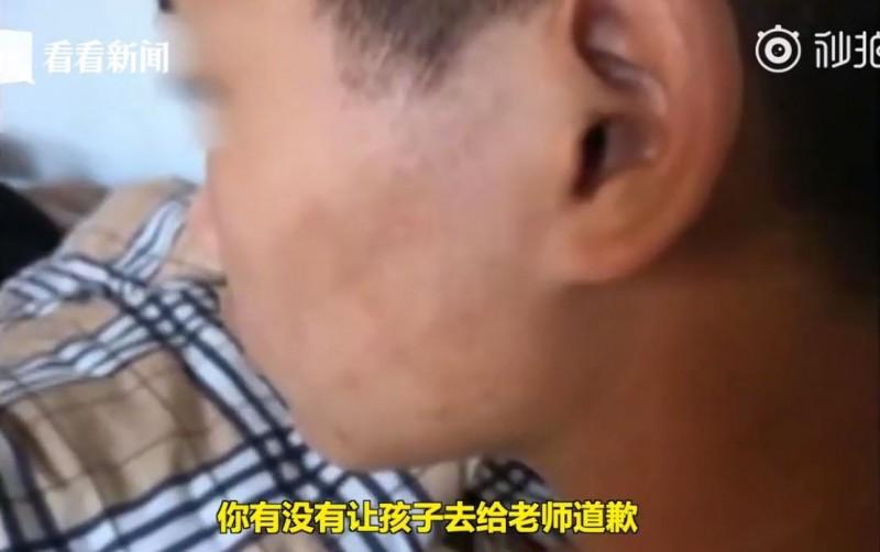 可以看到小強的左臉頰仍有被打耳光的痕跡。(圖擷自wang zhang YouTube)