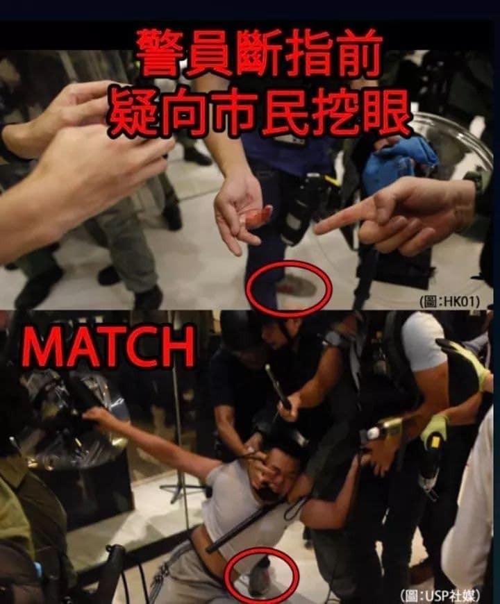 香港網友比對照片後,「還原」了該名員警手指被咬斷的事發經過。(圖擷取自連登討論區)