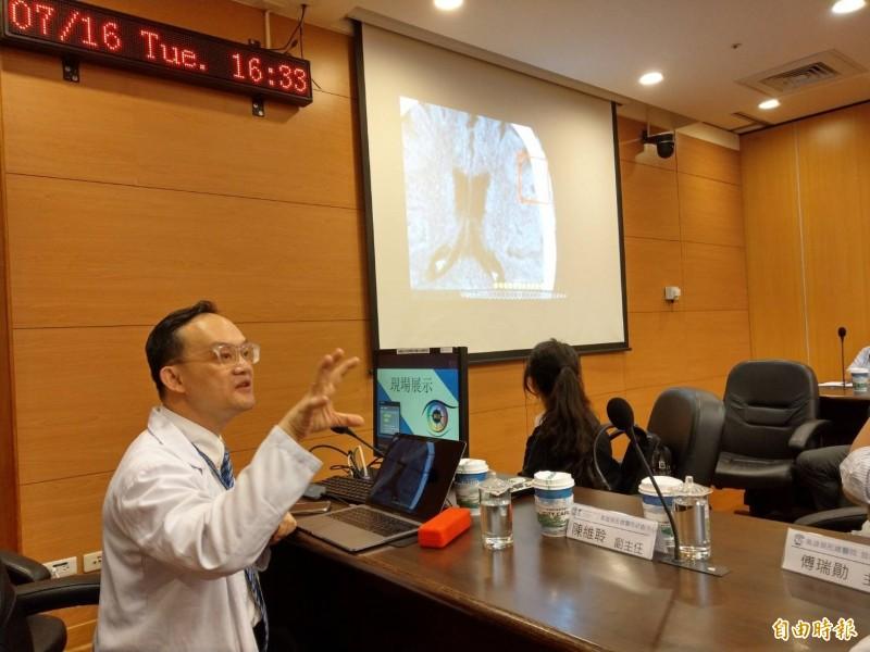高榮醫師楊宗龍表示,透過這項人工智慧判讀系統,可協助急診室醫師快速、準確判讀腦出血病人的腦部電腦斷層檢查。(記者方志賢攝)