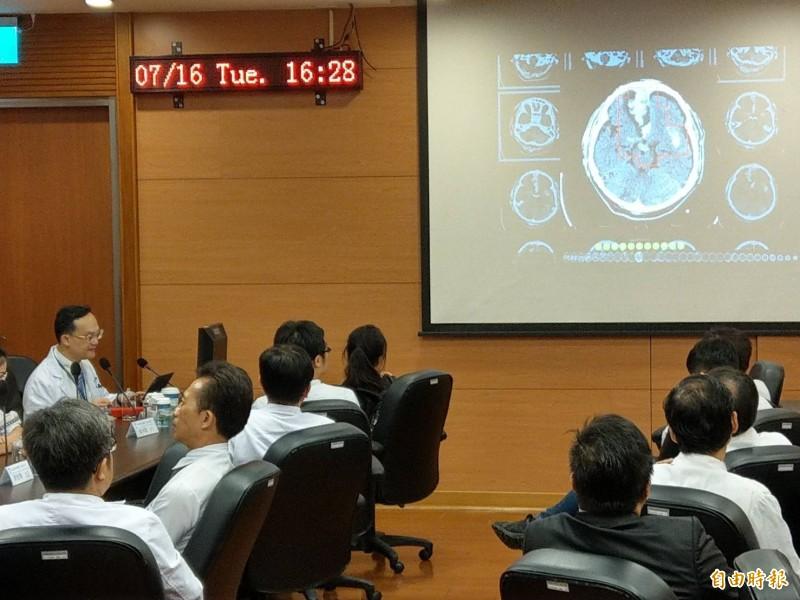 高榮醫師楊宗龍表示,腦出血病患的電腦斷層檢查丟入 人工智慧判讀系統,可協助醫師快速、準確判讀。(記者方志賢攝)