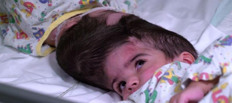 巴基斯坦籍的這對連頭女嬰,今年2月於英國進行手術後成功分離,並於7月1日正式出院。(擷取自大奧蒙德街醫院網頁)