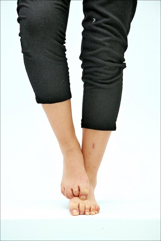 香港腳的症狀不一定是會癢,脫皮脫屑也是常見的症狀之一。(記者沈昱嘉/攝影)