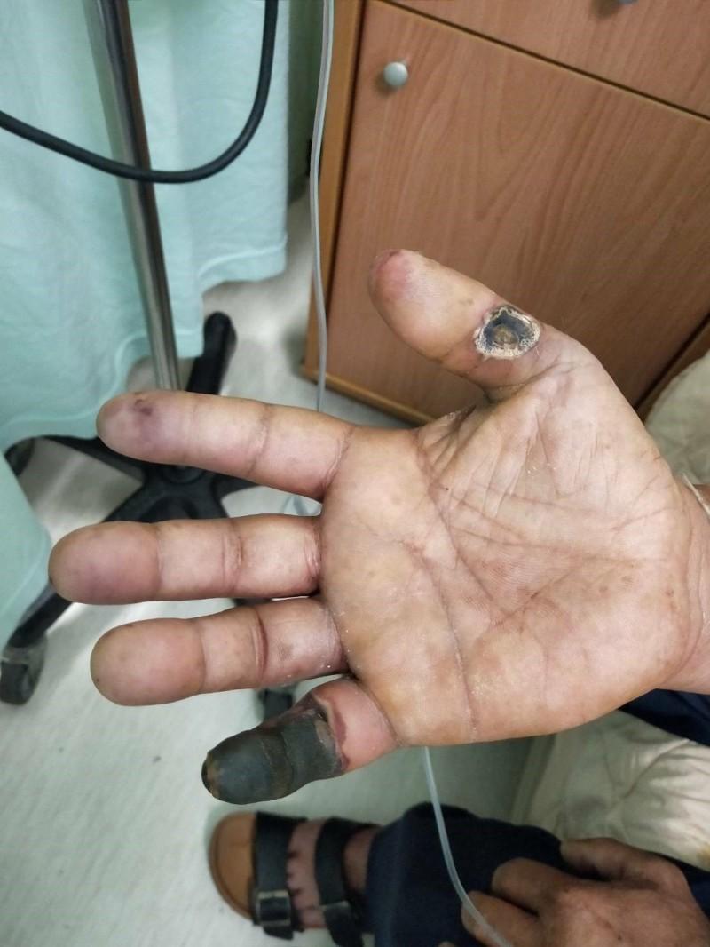 這名50多歲男子右手小指整個發黑,大拇指也爛掉一個洞岌岌可危,雖然醫師告知只要戒菸症狀可改善,不再惡化,不過男子目前只說「會試試看」戒菸。(門諾醫院提供)