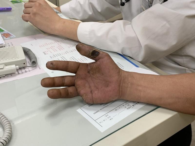 男子手術後截斷右手小指,回診時右手大拇指也已經岌岌可危。(門諾醫院提供)