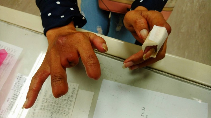 門諾醫院心臟血管外科主治醫師黃振銘另一位病人45歲的婦人,也是吸菸超過30年,她連續2次到門諾手術,右手食指、中指、無名指都已經截斷。(門諾醫院提供)