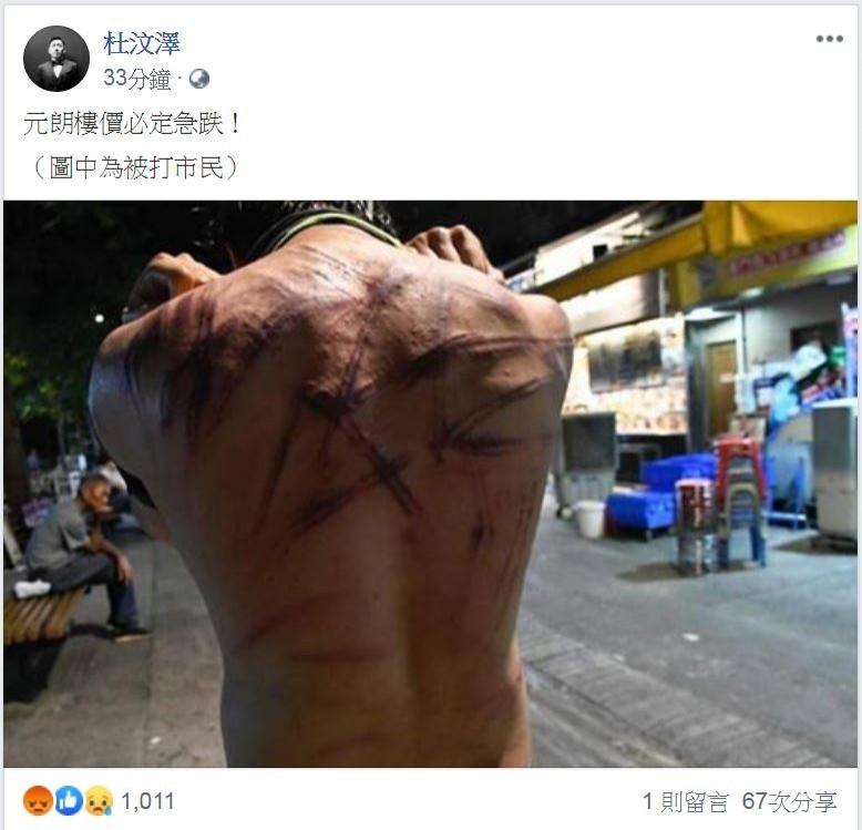 杜汶澤貼出民眾被打傷的照片,並指控此次是港府與黑道合作。(圖擷取自杜汶澤臉書)