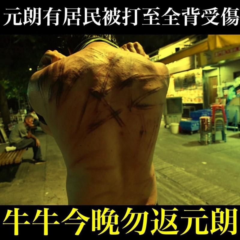 有民眾被白衣人毆打得背部滿是鞭痕。(圖擷取自TG_反送中 文宣谷)