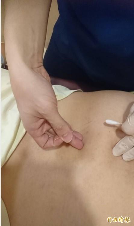 中醫師為病患施以「微創針刀」治療。(記者方志賢攝)