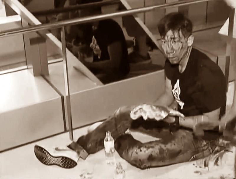 柳俊江被4、5人毆打到頭破血流,但他不後悔自己前去幫忙。圖經變色處理。(取自臉書社團巴打絲打 Facebook Club)