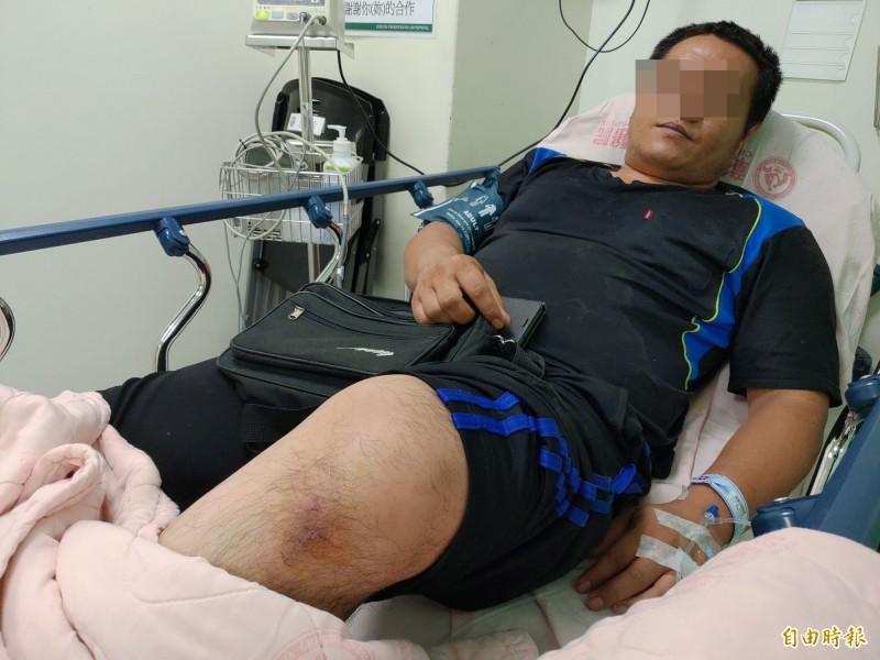 彰化福峰製酒廠氣爆,吳姓員工被氣波、火焰衝擊,造成身體多處燒傷。(記者陳冠備攝)
