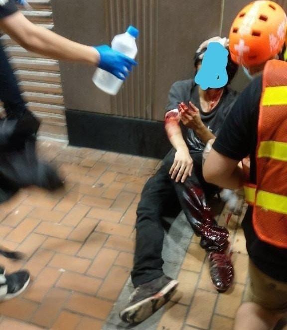荃灣傳出有40個黑社會持刀傷人。(圖擷取自臉書_泛民主派永遠佔在抗爭者對面)