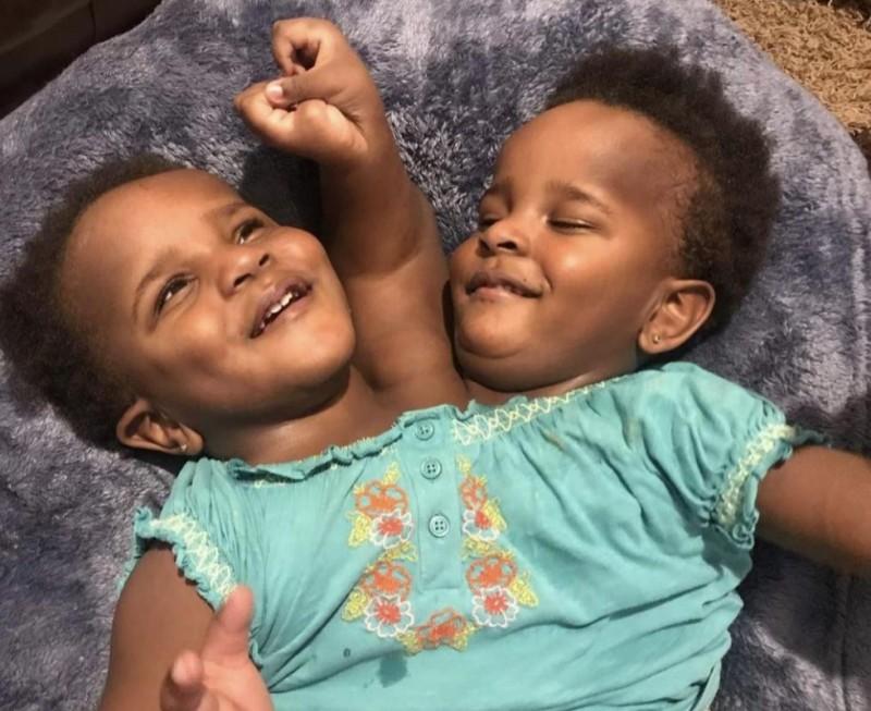 父親伊布拉希馬(Ibrahima Ndiaye)帶著3歲的雙胞胎連體女兒馬里姆(Marieme)和恩迪耶(Ndeye)到英國求醫。(圖擷取自推特@leralpointnet)