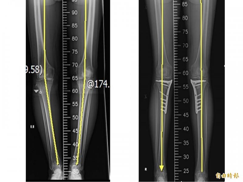 3D列印技術能客製化膝關節,並製作符合膝關節的模板,來矯正關節病變、磨損。(記者王捷攝)