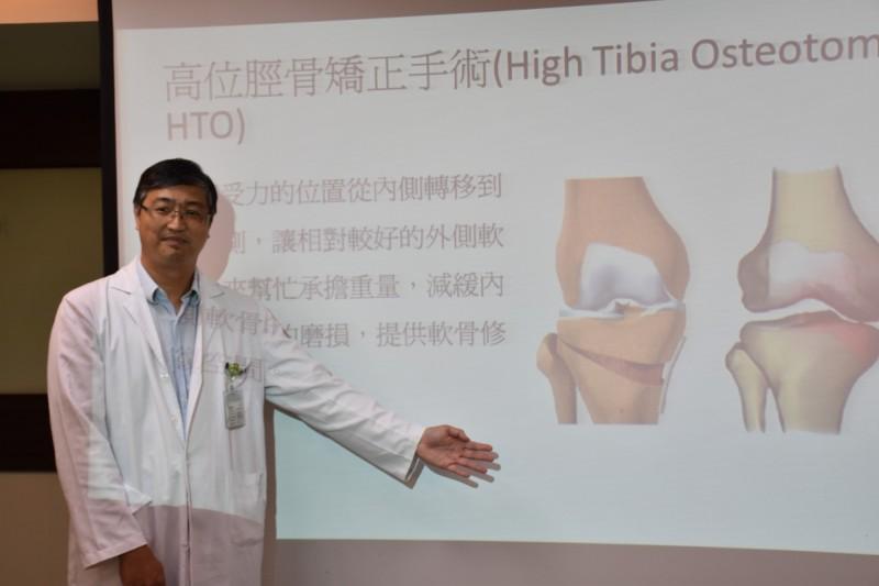 邵崇榮醫師改良膝關節手術的固定方式,藉由三角立體結構穩定的概念,讓膝關節能有更好的固定。(記者王捷翻攝)