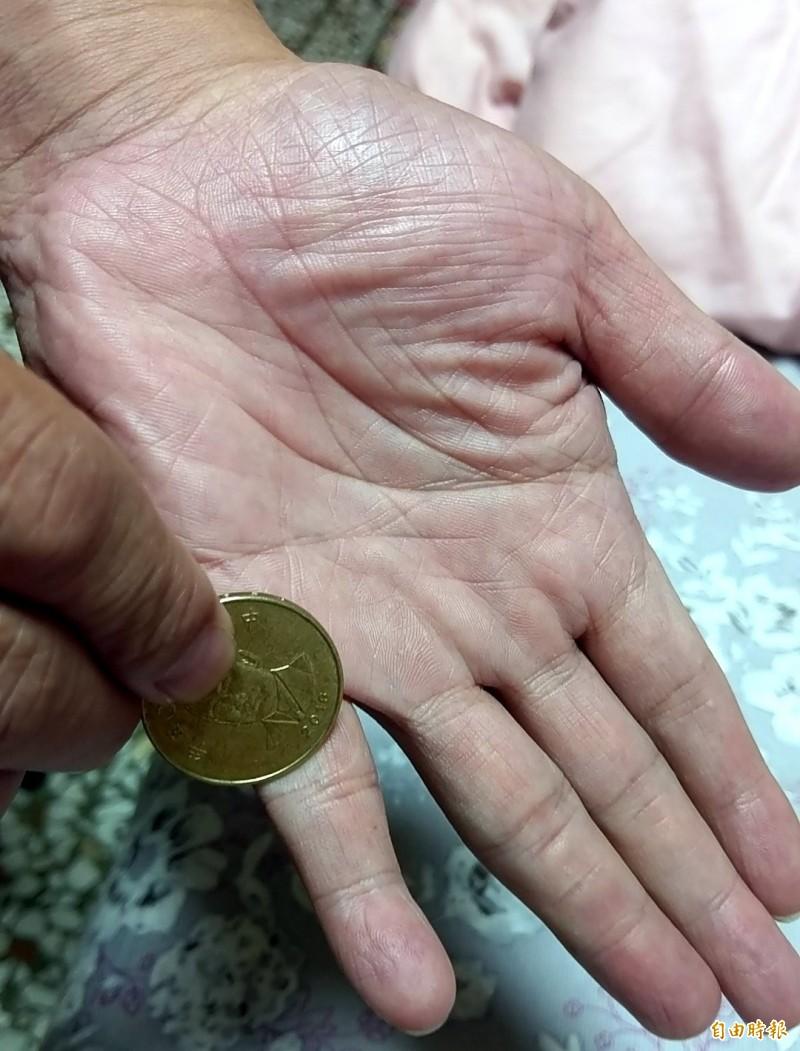 網傳右手持50元硬幣刮小指、中指及手心,可預防中風發生。(記者謝介裕攝)