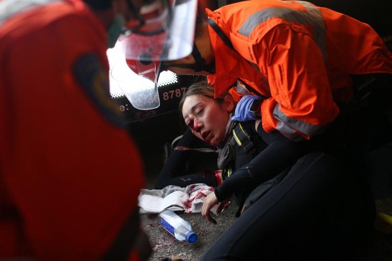 這名女子11日晚間在尖沙咀警民衝突中,遭港警以布袋彈射破眼罩、擊中眼睛,當場血流如注,且傷口附近有骨碎情況。(歐新社)