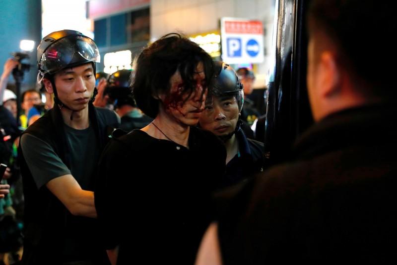 參加反送中抗爭的男子被打得滿臉瘀青,被警方逮捕上車。(路透)