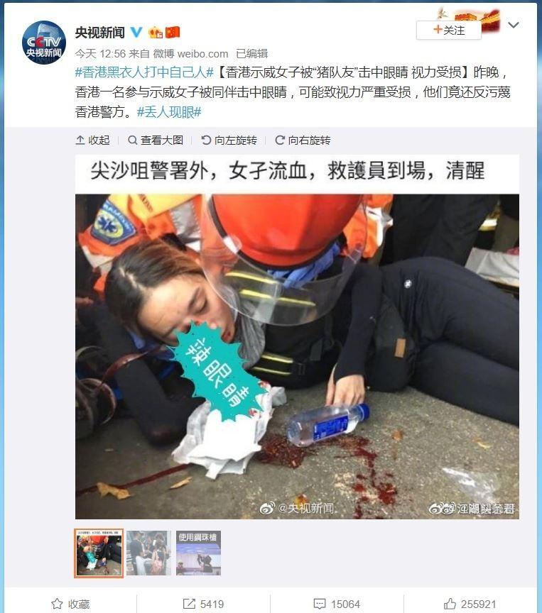 香港一名女示威者昨晚遭警彈襲,恐永久失明。中國官方媒體「央視」今(12)日竟指她是被遭「豬隊友」射擊,反批示威者汙衊香港警方。(圖擷取自微博)