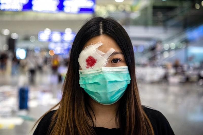 抗議民眾戴上滲血眼罩,表達港警對女子射眼的不滿。(歐新社)