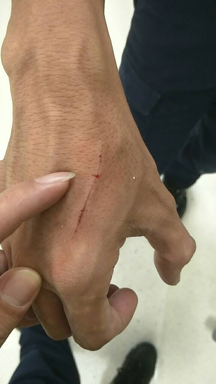 另一名員警顏長弘(右)的右手受到5公分擦挫傷。(記者黃良傑翻攝)